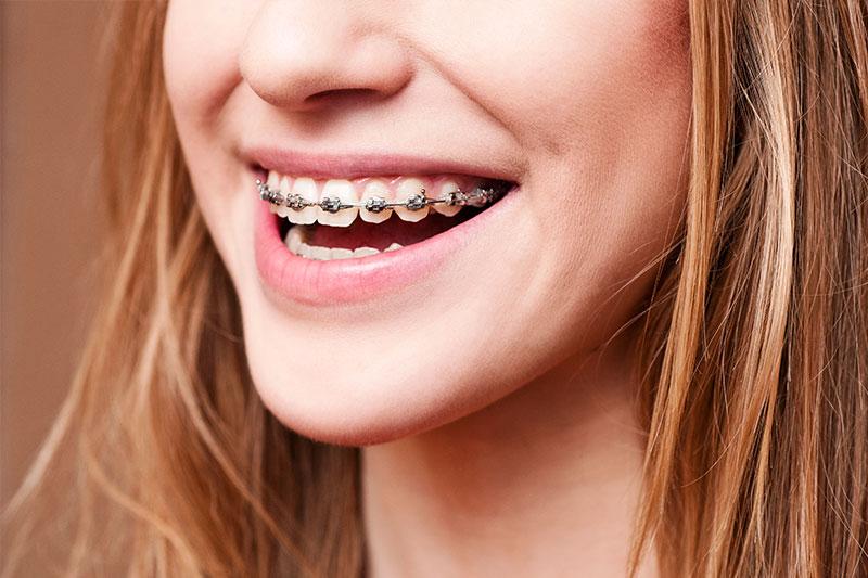 Orthodontics - Pacific Ocean Dental Group, Los Angeles Dentist