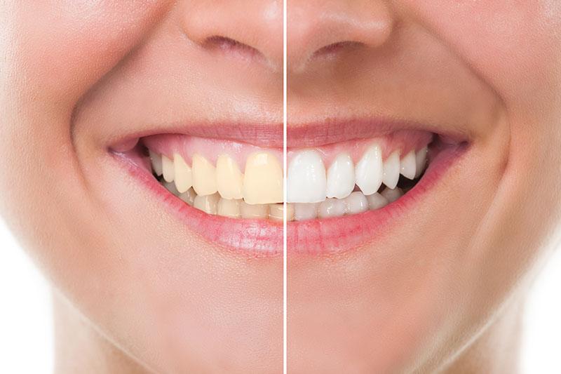 Teeth Whitening - Pacific Ocean Dental Group, Los Angeles Dentist